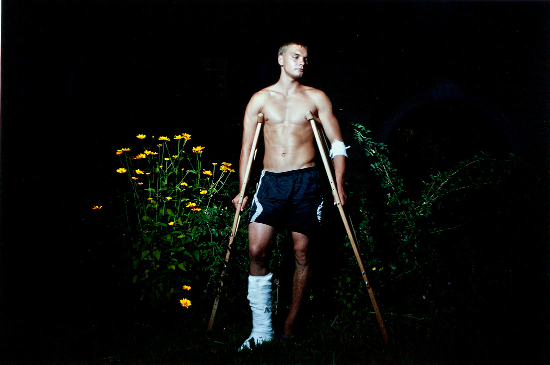 Man with Football Injury II  - Енсетт, Річард