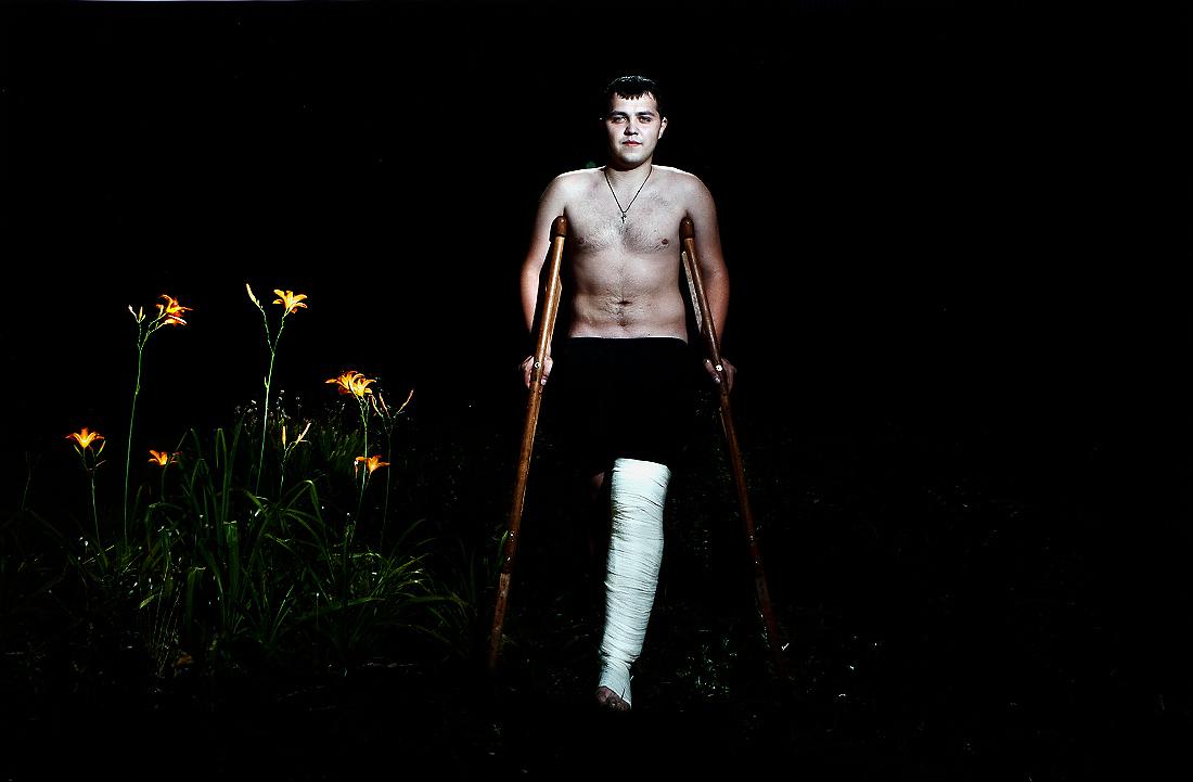 Man with Football Injury - Ansett, Richard